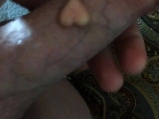 My Pearl (implant) In My Cock :-d